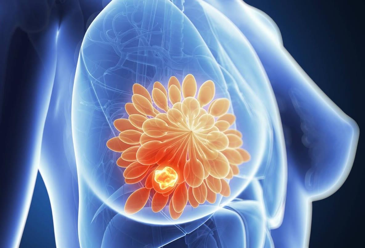 得了这4种癌症,别太灰心!即便晚期也可能被治愈,得有信心战胜